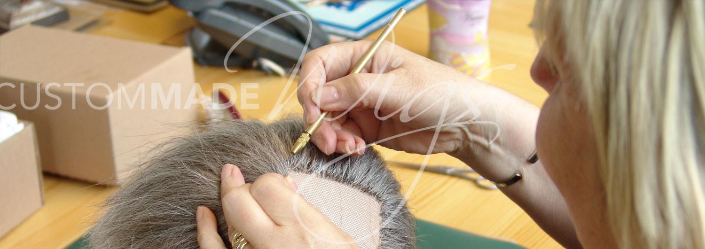 HAIR LOSS SOLUTIONS & ADVICE